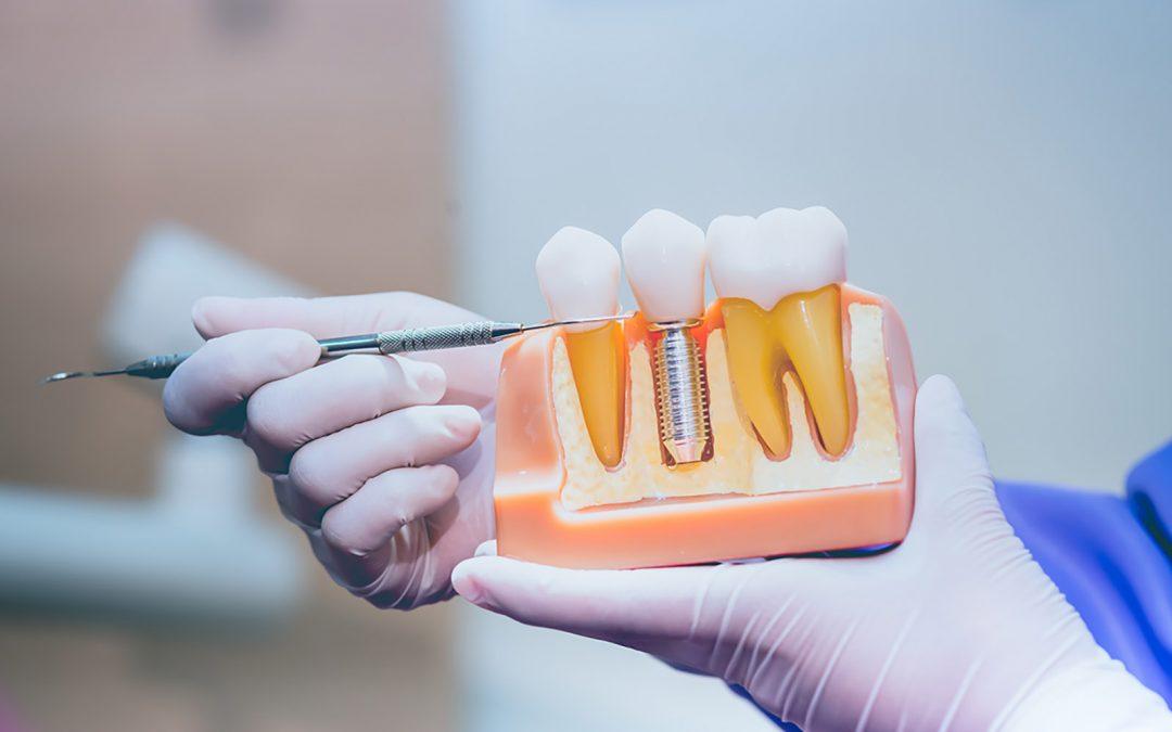 Qué diferencia hay entre prótesis e implante