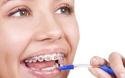 Cuidado de los dientes con brackets