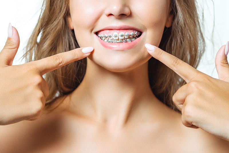 ¿Necesitas ortodoncia Sevilla? Todo lo que debes saber