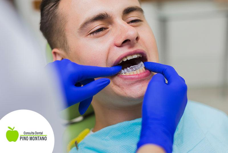 ¿Para qué sirven el retenedores de ortodoncia?